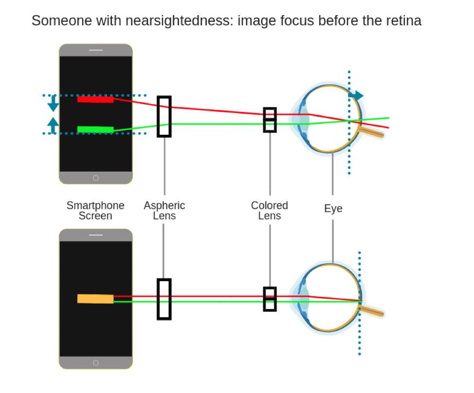 nearsightedness-diagram.png